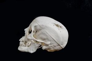3D printed skull